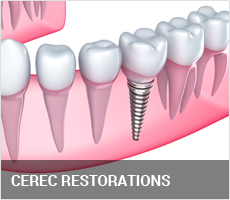 cerec-feature