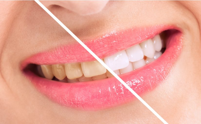 Preventing Tooth Whitening Loss