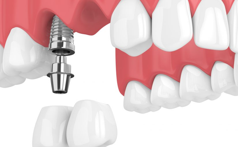 Considering Bridgework Over Dental Implants
